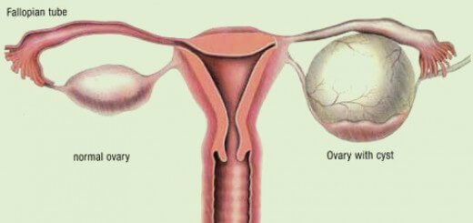 What You Should Know About Ovarian Cysts