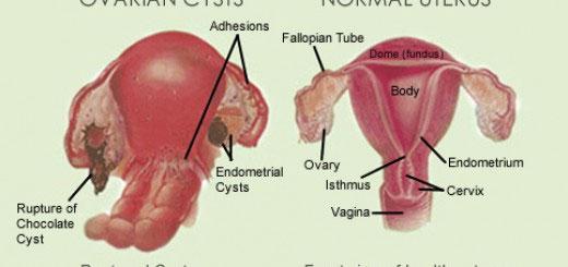 Signs & Symptoms of Endometriosis?