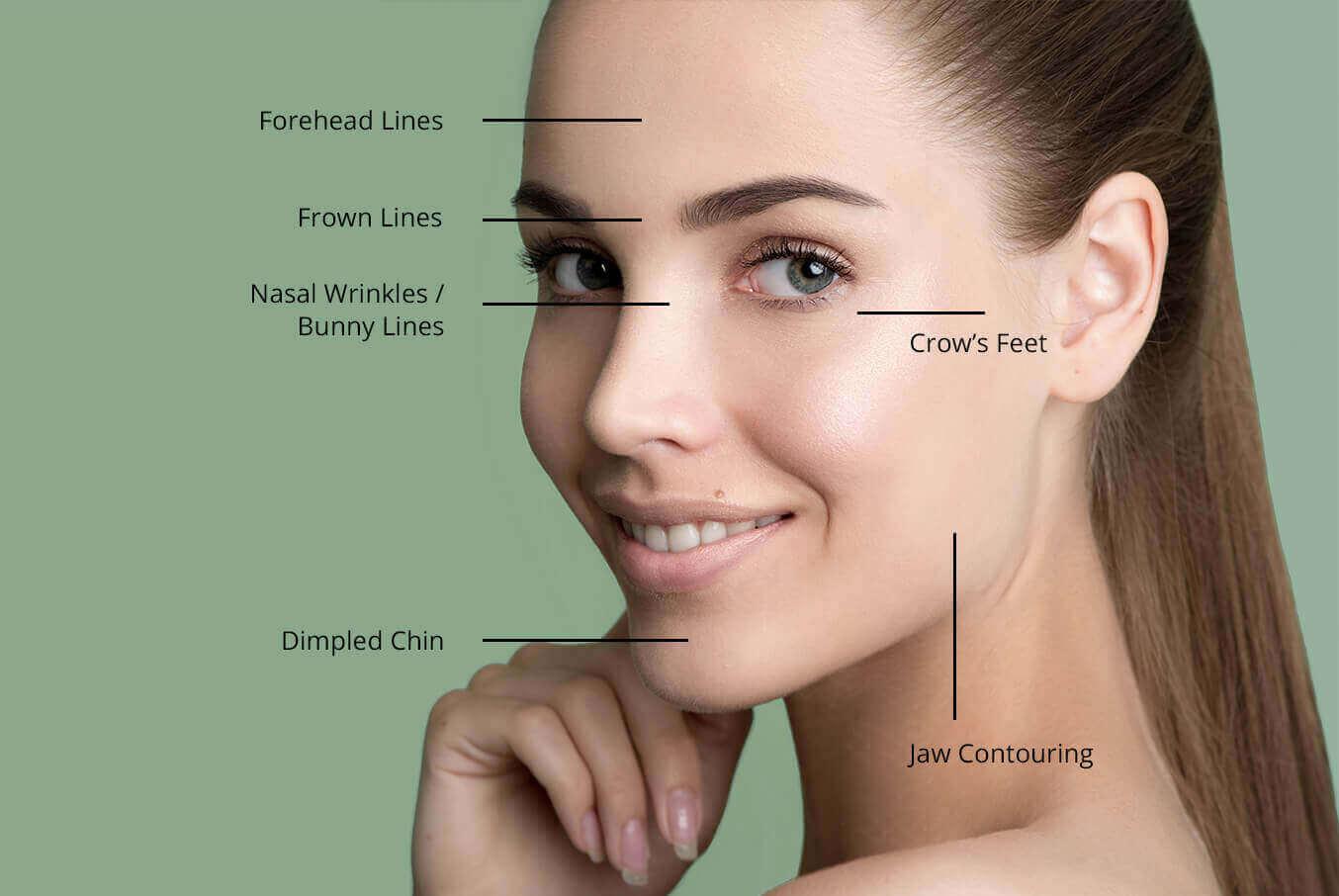 Wrinkles & Lines
