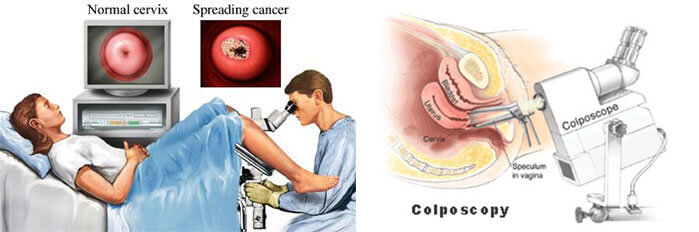 Colposcopy & Cervical Biopsy