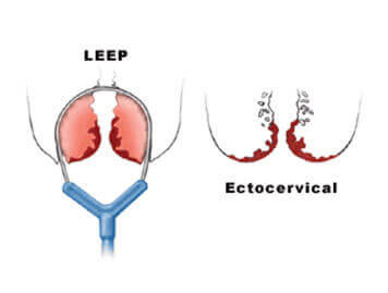 Loop Electrosurgical Excision Procedure (LEEP) & Cone Biopsy