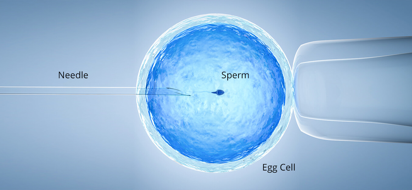 In-Vitro Fertilisation (IVF)