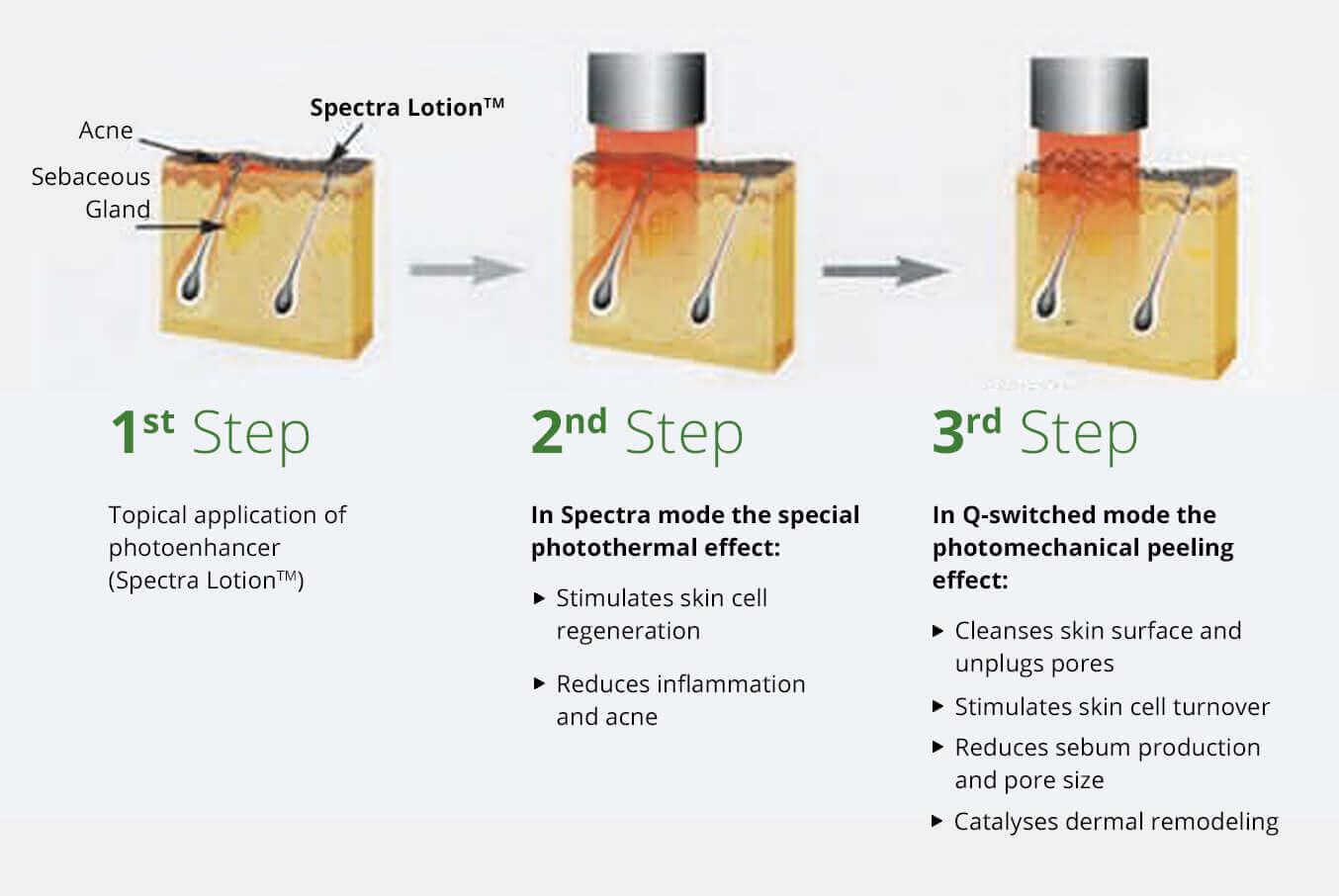SpectraPeel™ Treatment