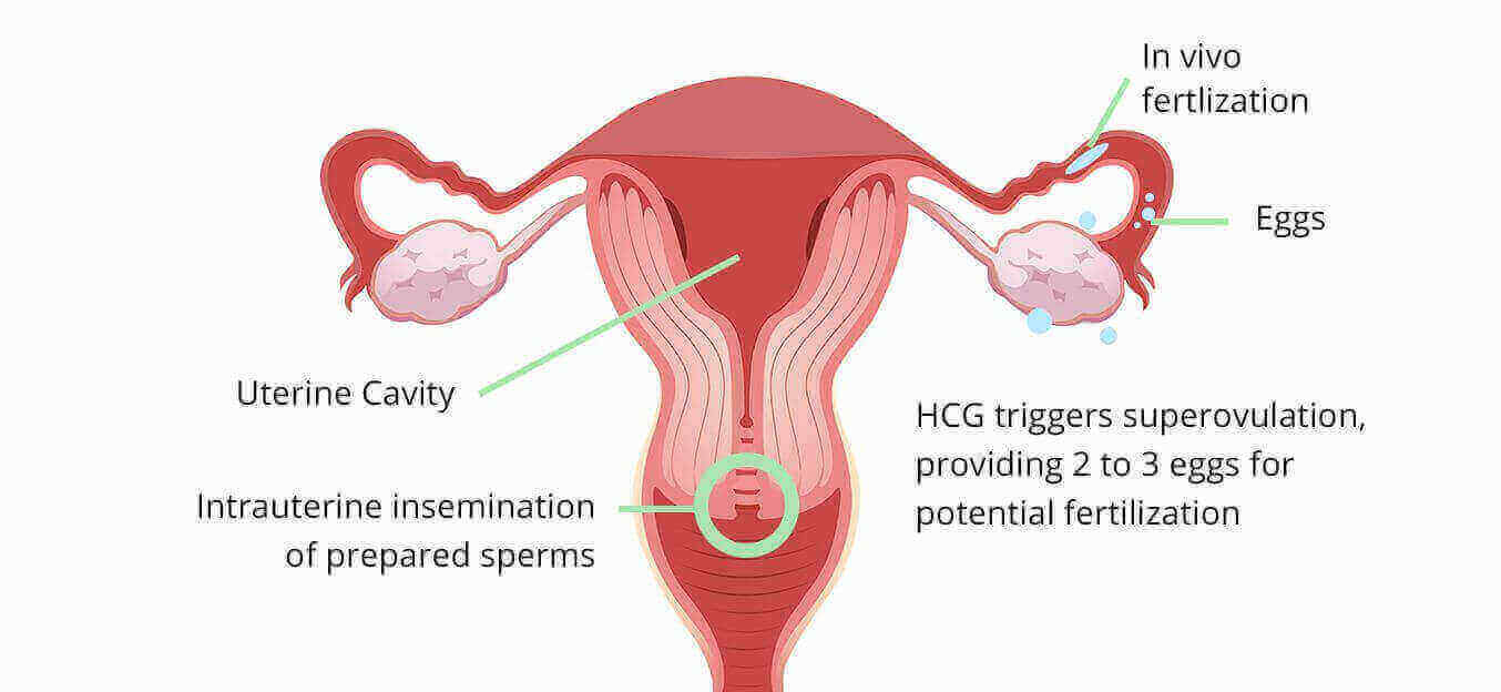 Superovulation Intra-Uterine Insemination